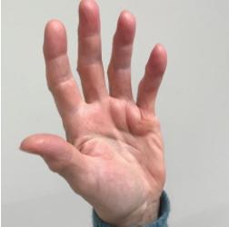 Ziekte van Dupuytren